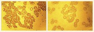 Гемосканирование 4