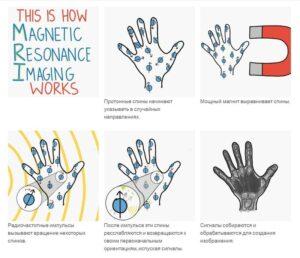 квантовая физика применение в повседневной жизни - как работает МРТ